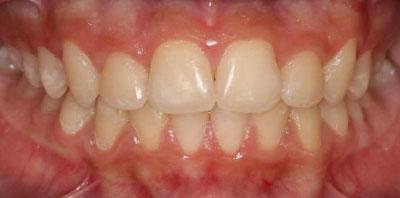 Ortodoncia + Gingivectomía Después - Clínica Dental Miguel Ángel García