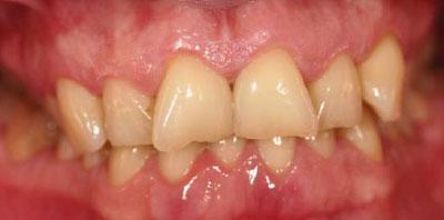 Ortodoncia+Gingivectomía+Carillas Antes - Clínica Dental Miguel Ángel García