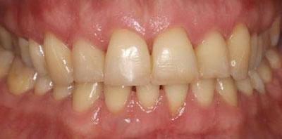 Ortodoncia gingivectomia carillas Después
