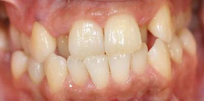 Ortodoncia y Reconstrucción estética Antes - Clínica Dental Miguel Ángel García