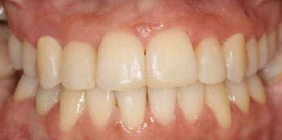 Ortodoncia y Reconstrucción estética Después - Clínica Dental Miguel Ángel García