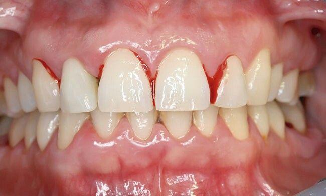erosión dental sensibilidad