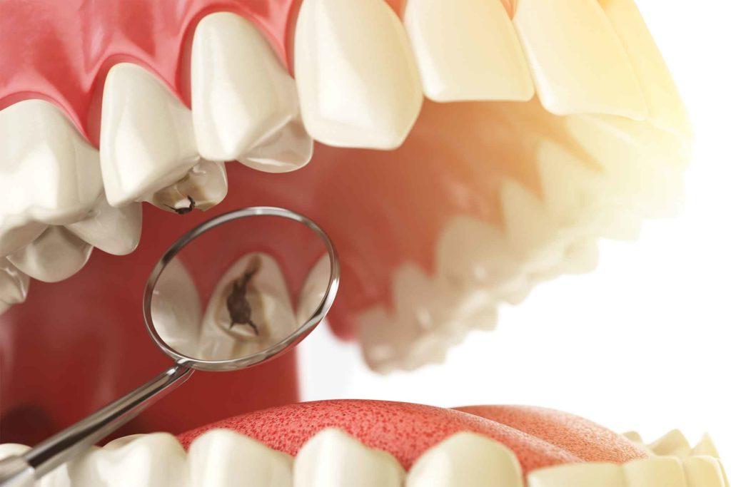 enfermedades dentales caries