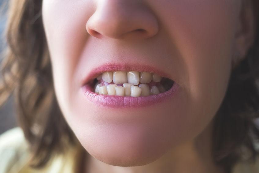 Apiñamiento dental y tratamientos