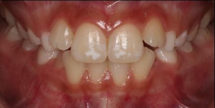 Ortodoncia Gingivectomía Antes - Clínica Dental Miguel Ángel García