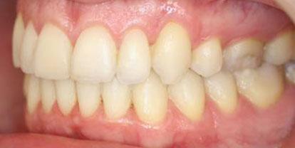 Ortodoncia Blanqueamiento Después - Clínica Dental Miguel Ángel García