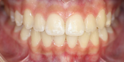 Ortodoncia Gingivectomía Después - Clínica Dental Miguel Ángel García