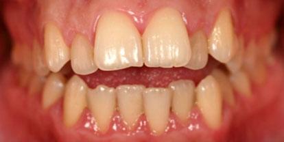 Ortodoncia + Blanqueamiento Antes - Clínica Dental Miguel Ángel García