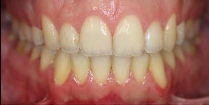 Ortodoncia + Blanqueamiento Después - Clínica Dental Miguel Ángel García