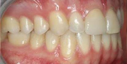 Ortodoncia + Corona cerámica Después