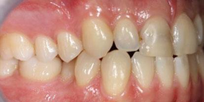 Ortodoncia + Corona cerámica antes - Clínica Dental Miguel Ángel García