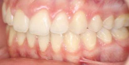 Ortodoncia + Blanqueamiento + Estética dental Después