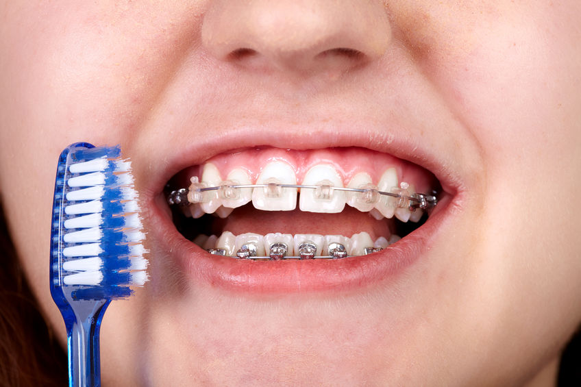 brackets cepillado dental