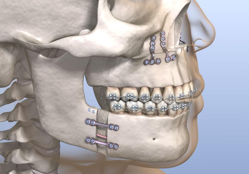 Cirugía ortognática bimaxilar