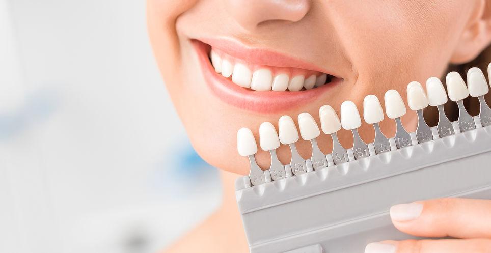 blanqueamiento dental dientes no vitales