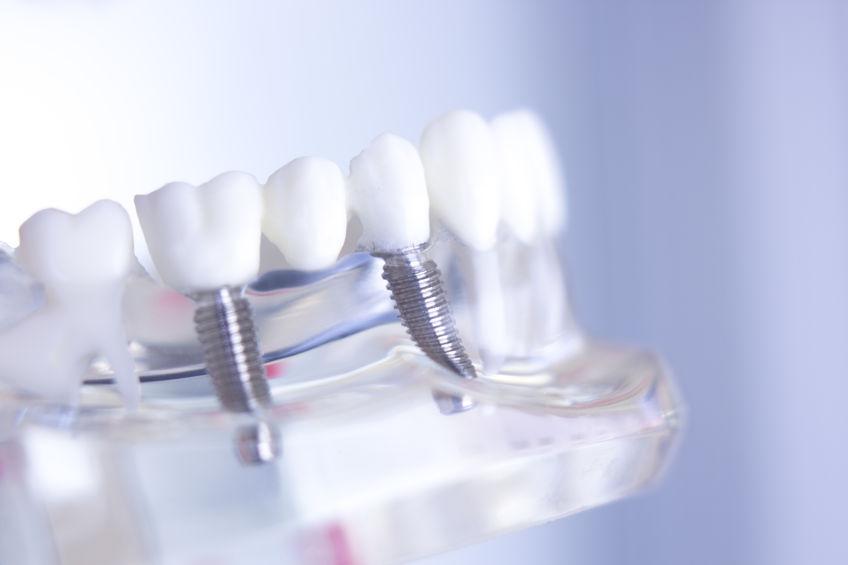 implantes dentales tipos