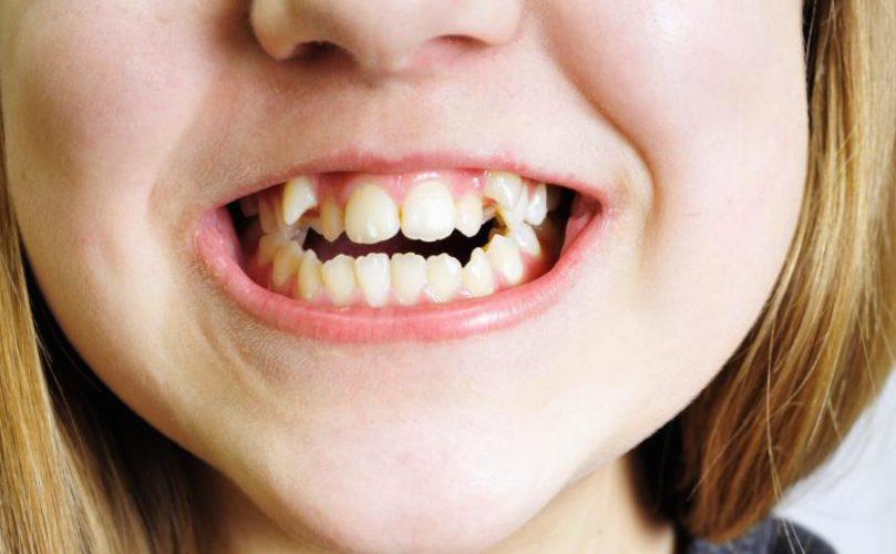 apiñamiento dental